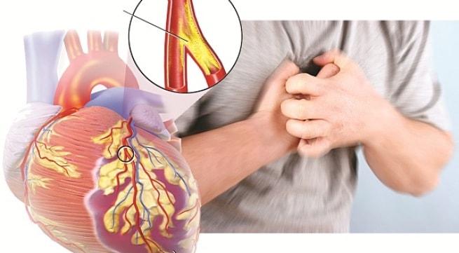 Dấu hiệu sớm của bệnh động mạch